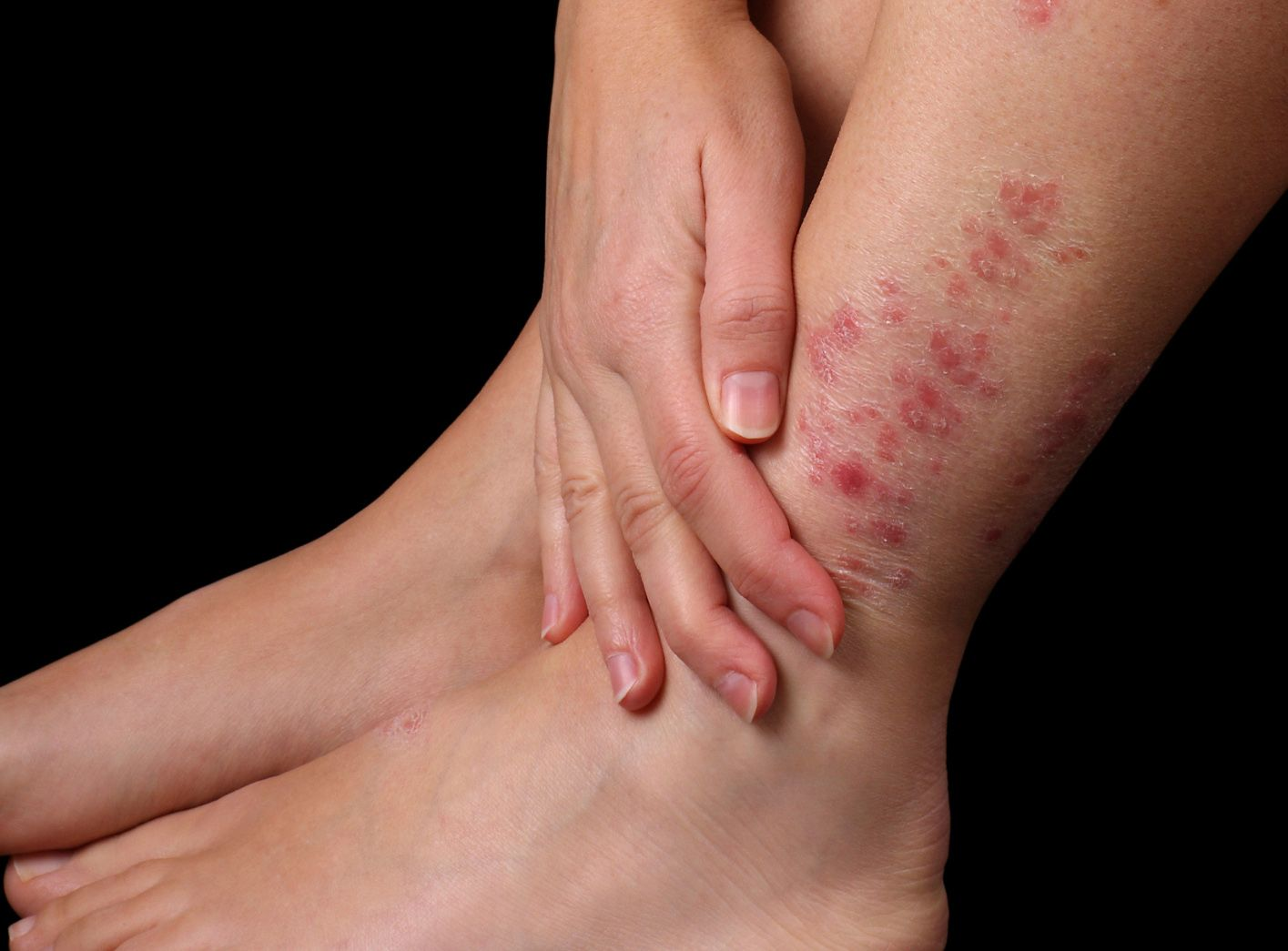 Los baños salinos para los pies a la psoriasis