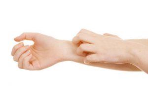 Dermatits seborreica