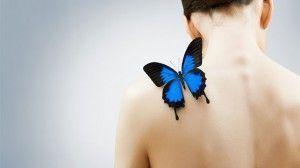 piel de mariposa epidermólisis bullosa