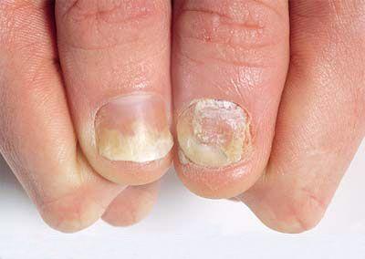La tintura de la inula salicina sobre el aguardiente de la psoriasis