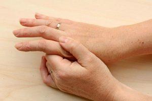 consejos para convivir con la artritis psoriásica