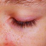 Dermatomiositis: una desconocida enfermedad autoinmune que afecta a la piel