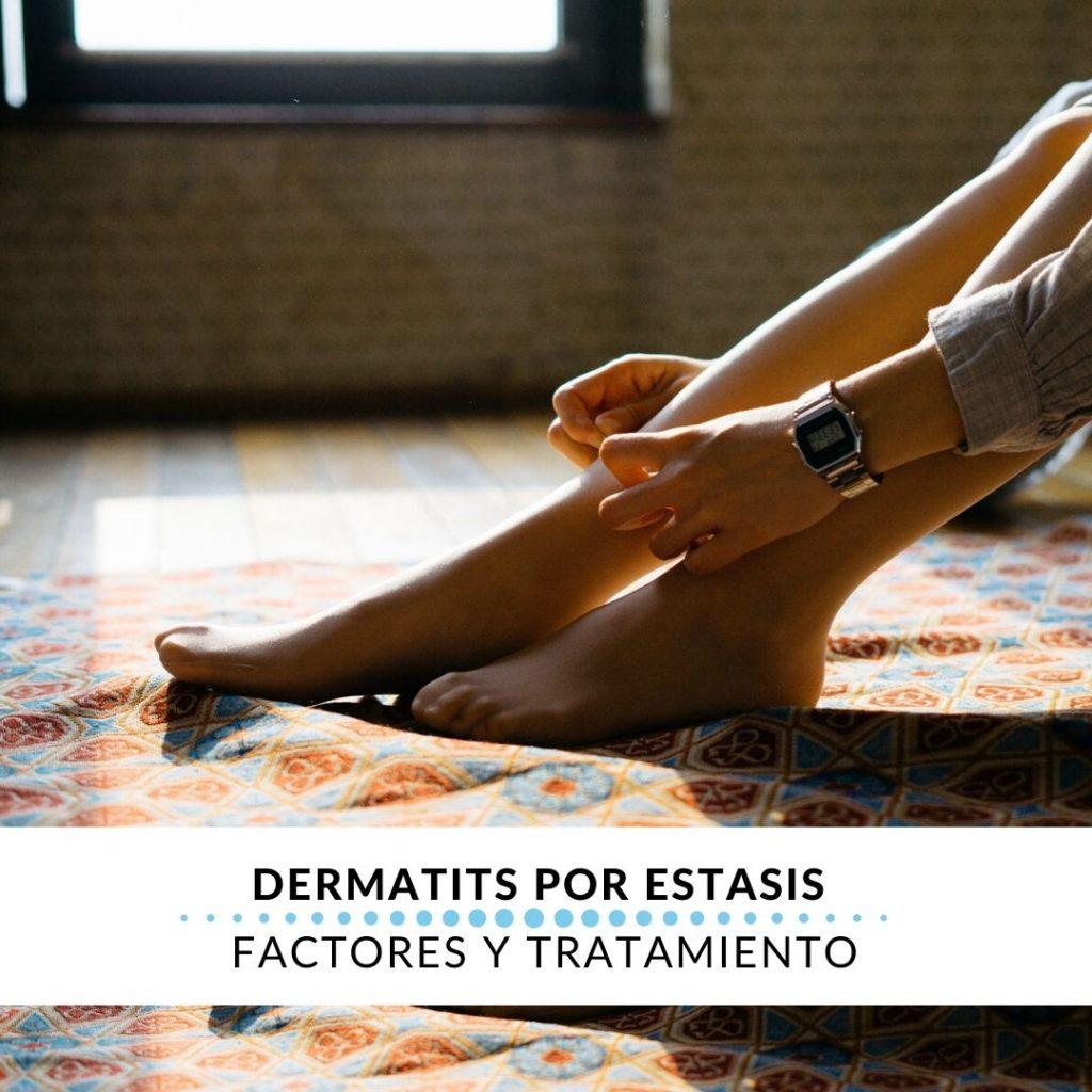dermatitis por estasis factortes y tratamiento