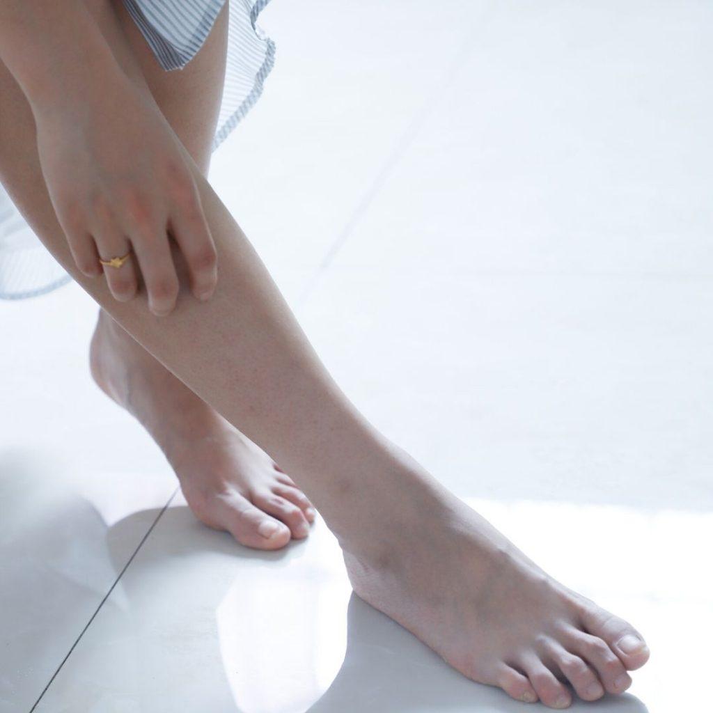 mujer rascandose la pierna con tendencia a dermatitis por estasis