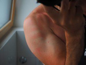 sunburn-2117350_960_720
