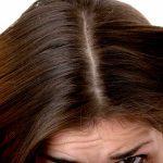 Cuero cabelludo seco y pruriginoso: cómo tratar la psoriasis en esta zona del cuerpo