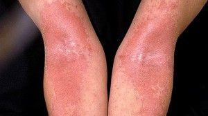 psoriasis en los brazos con rochas muy rojas