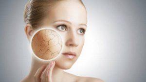 cómo se produce un eczema