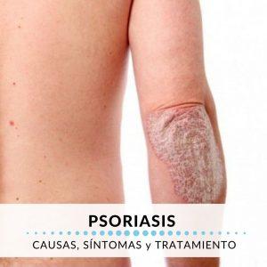 psoriasis síntomas y causas